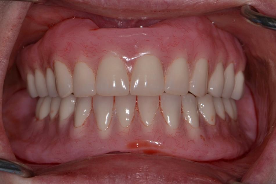 Maxillary and mandibular complete dentures - After treatment
