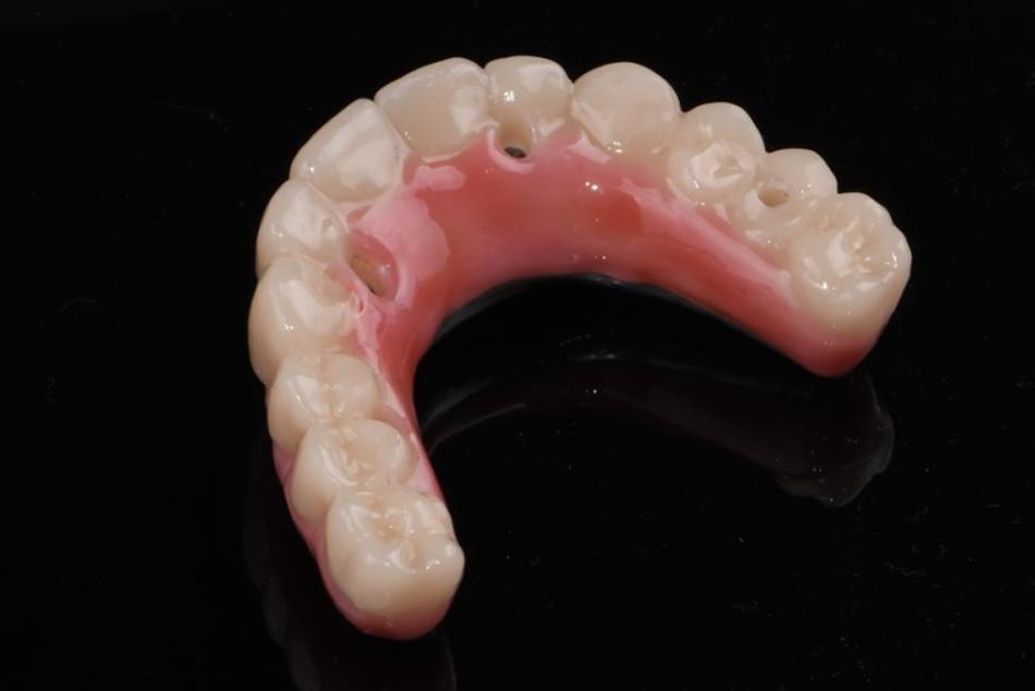 Implant hybrid dentures 3
