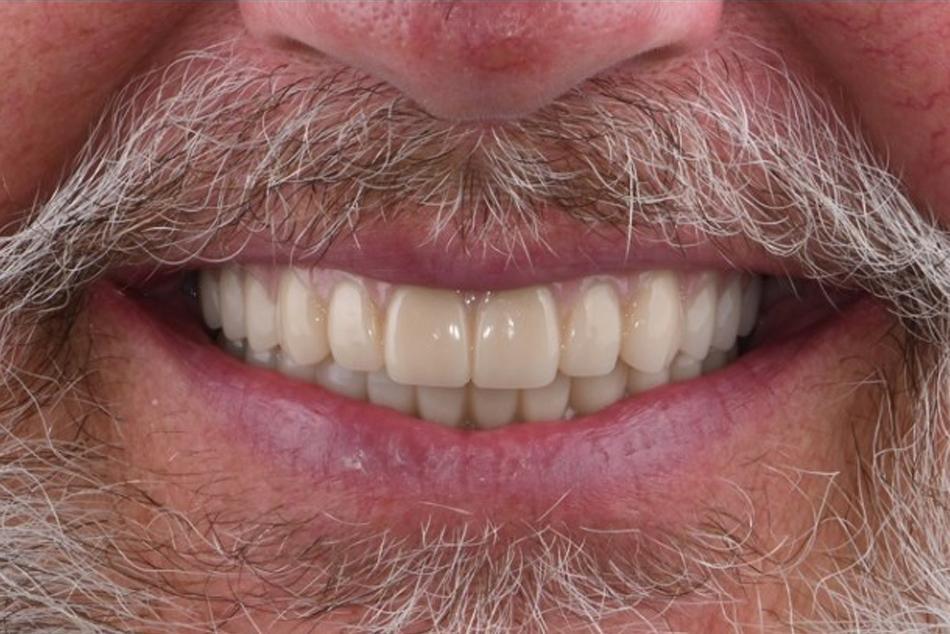 Implant supported maxillary and mandibular hybrid dentures - After treatment 1