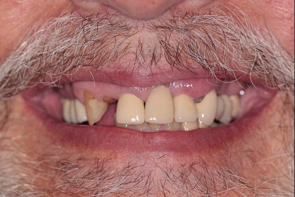 Implant supported maxillary and mandibular hybrid dentures - Before treatment