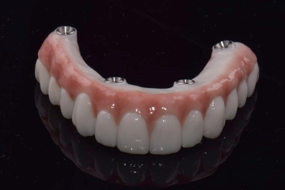 Implant hybrid dentures 2