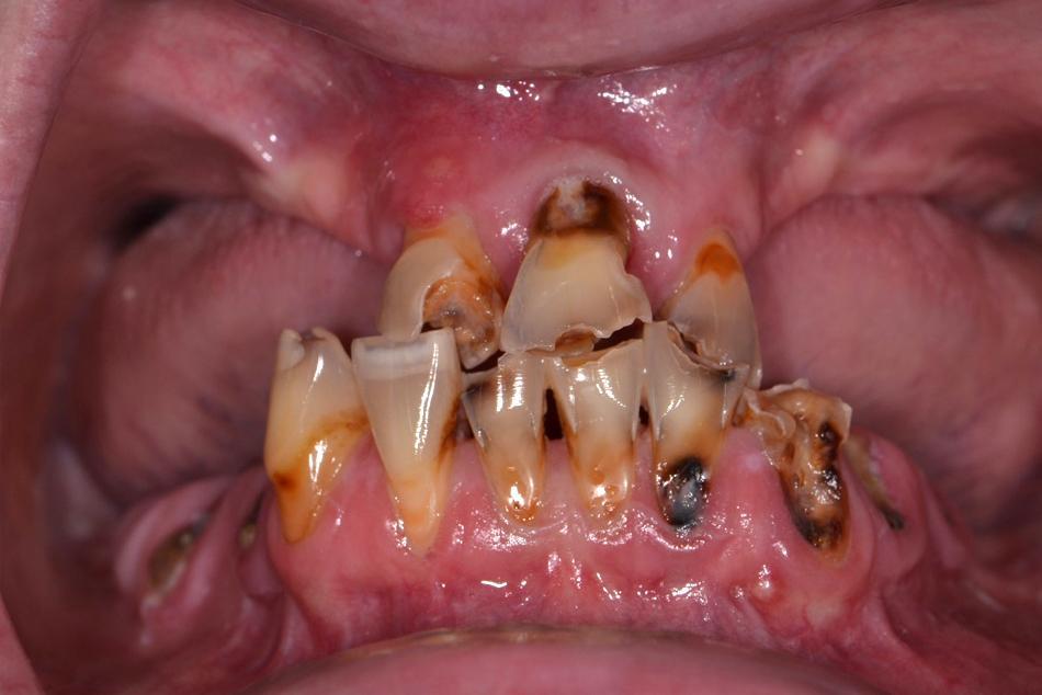 Maxillary and mandibular complete dentures - Before treatment